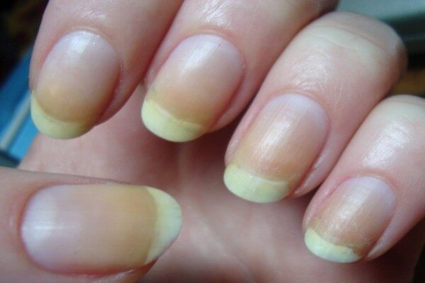 Turning yellow nails back to normal